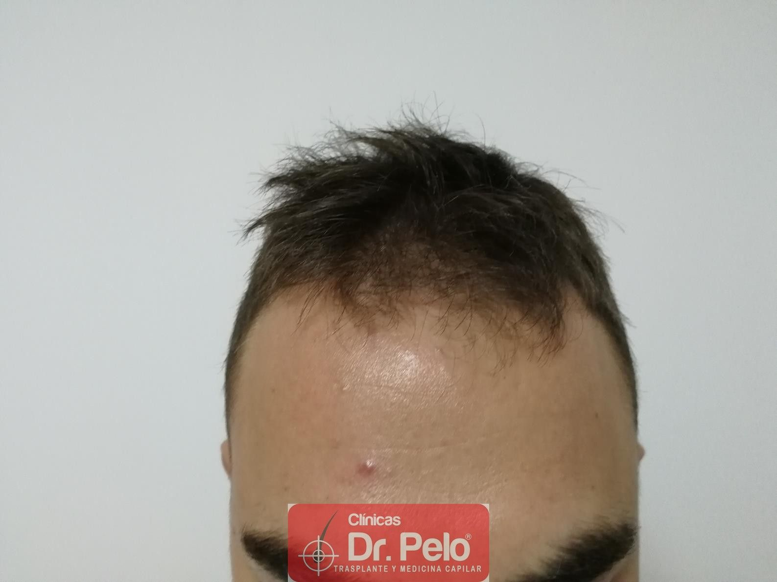 [Imagen: tratamiento-capilar-fue-dr-pelo-2.jpg]