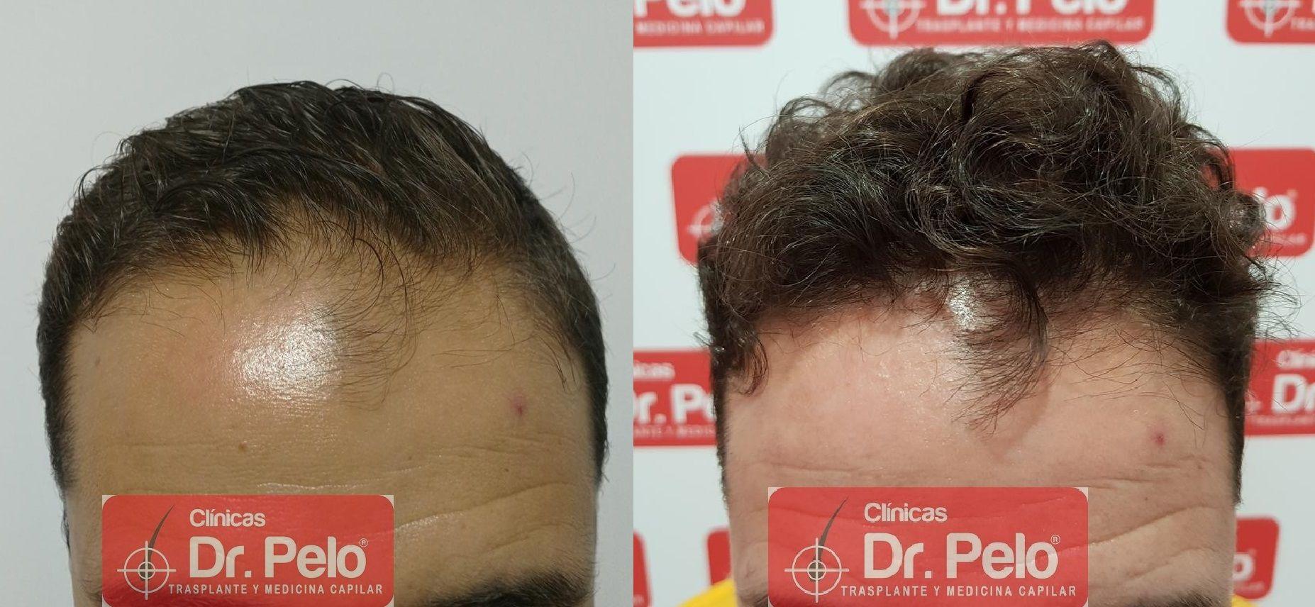 [Imagen: tratamiento-capilar-fue-dr-pelo-20-1.jpg]