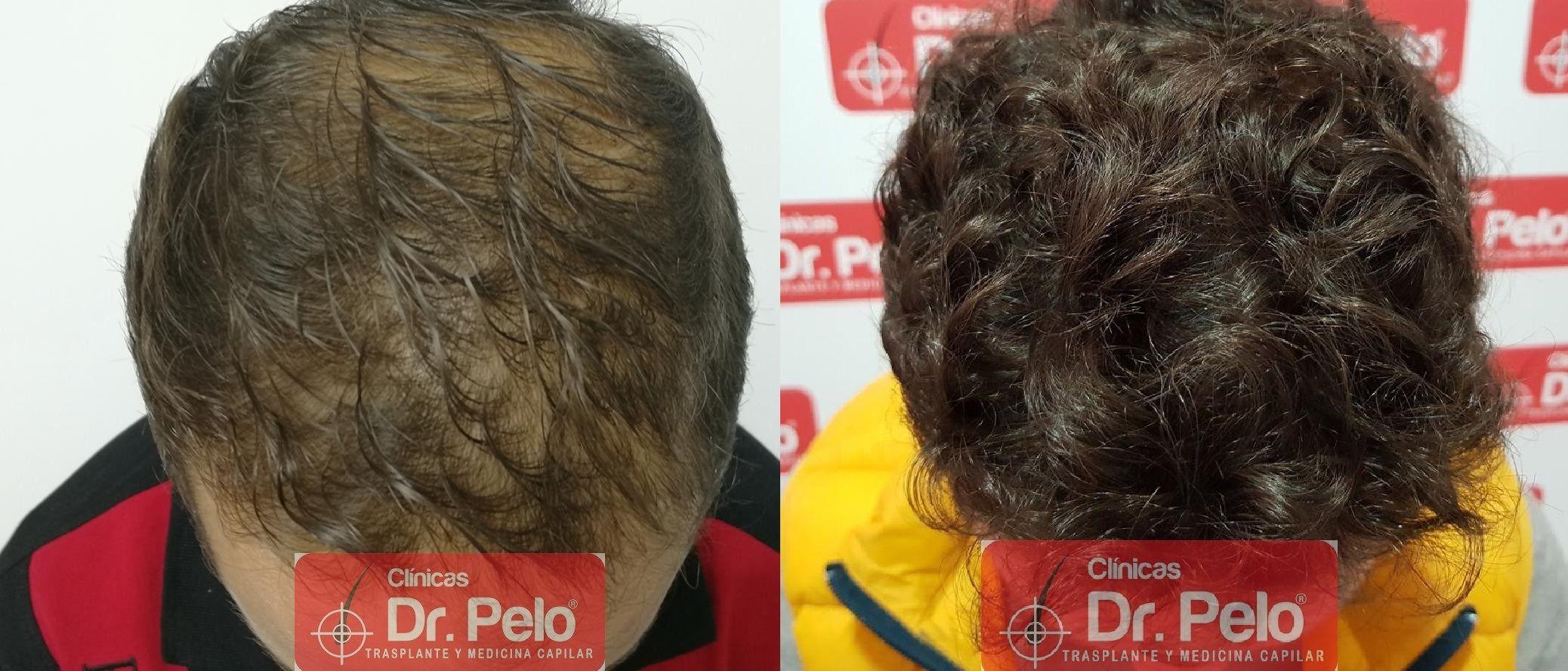 [Imagen: tratamiento-capilar-fue-dr-pelo-21.jpg]