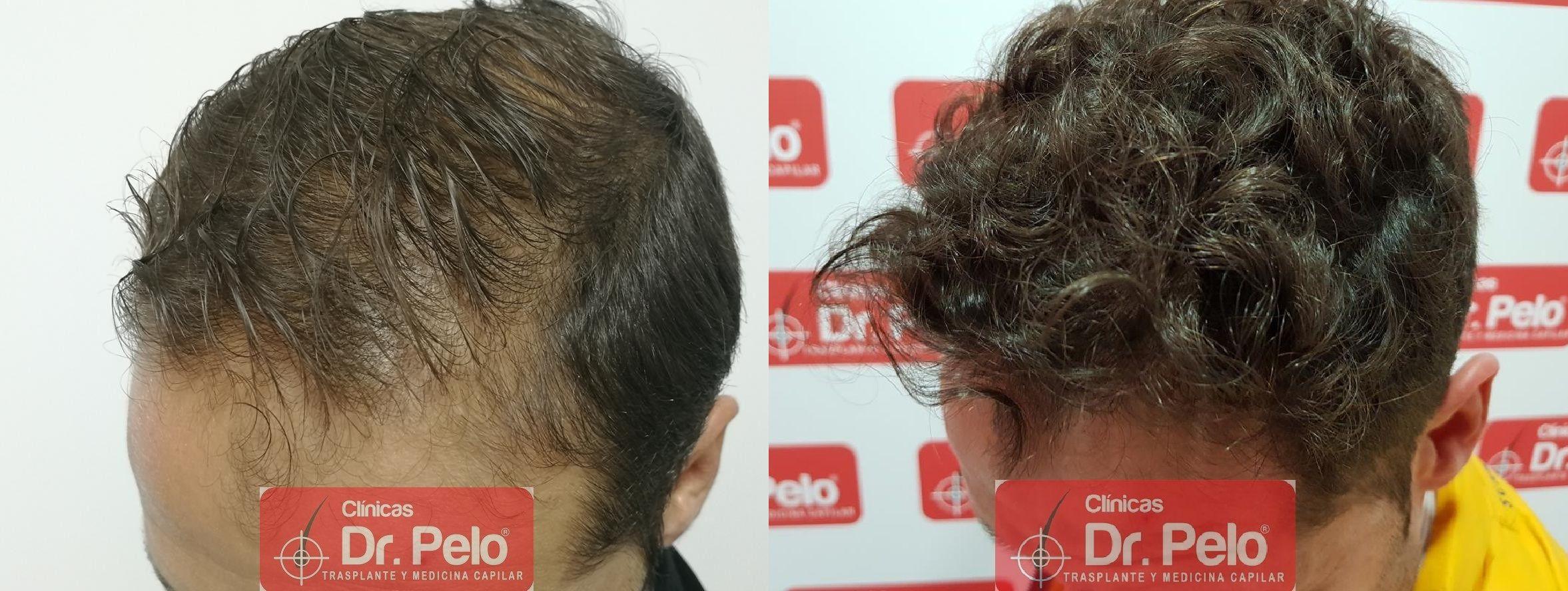 [Imagen: tratamiento-capilar-fue-dr-pelo-22.jpg]