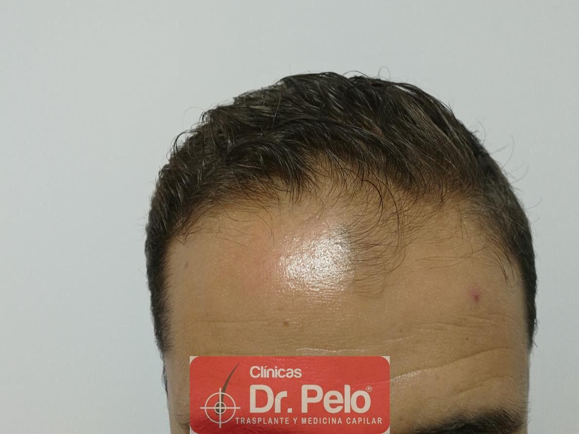 [Imagen: tratamiento-capilar-fue-dr-pelo-3-1.jpg]