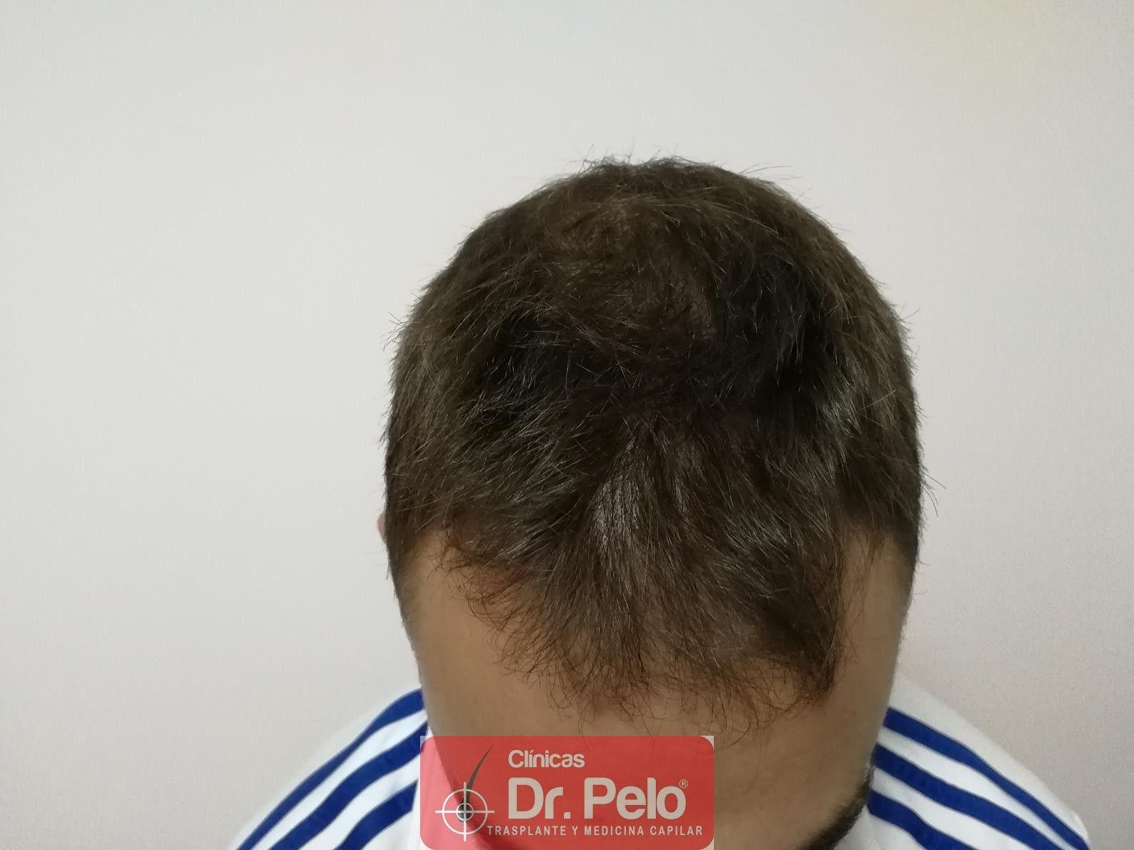 [Imagen: tratamiento-capilar-fue-dr-pelo-3.jpg]