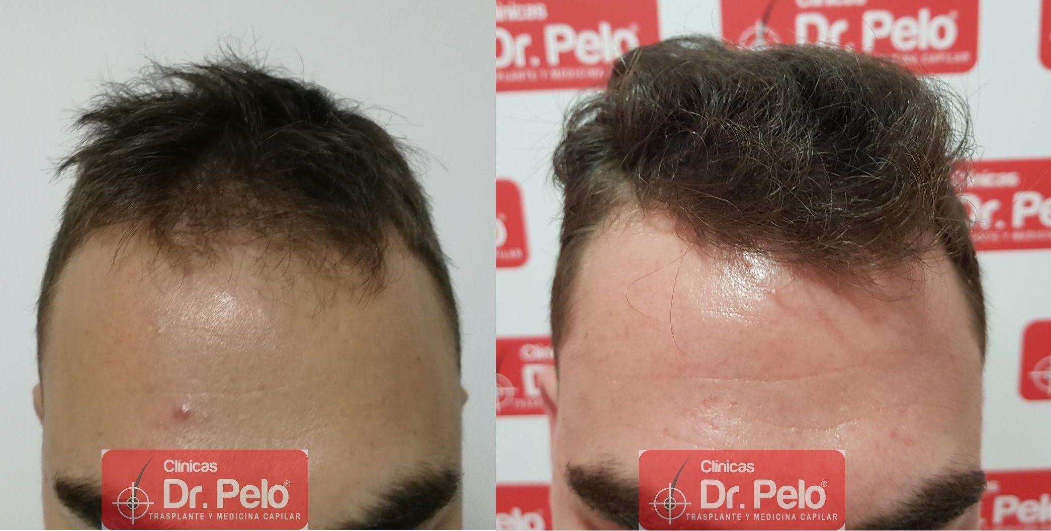 [Imagen: tratamiento-capilar-fue-dr-pelo-30.jpg]