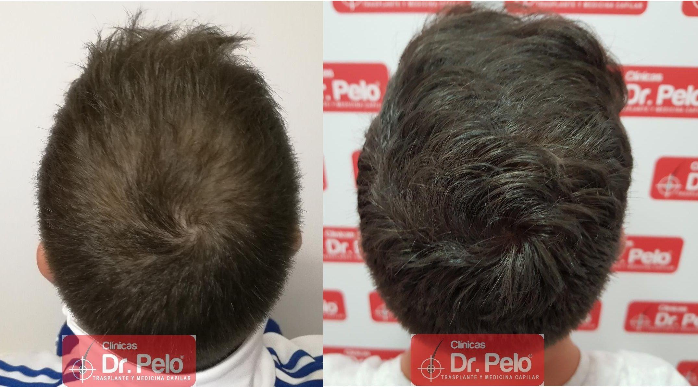 [Imagen: tratamiento-capilar-fue-dr-pelo-33.jpg]