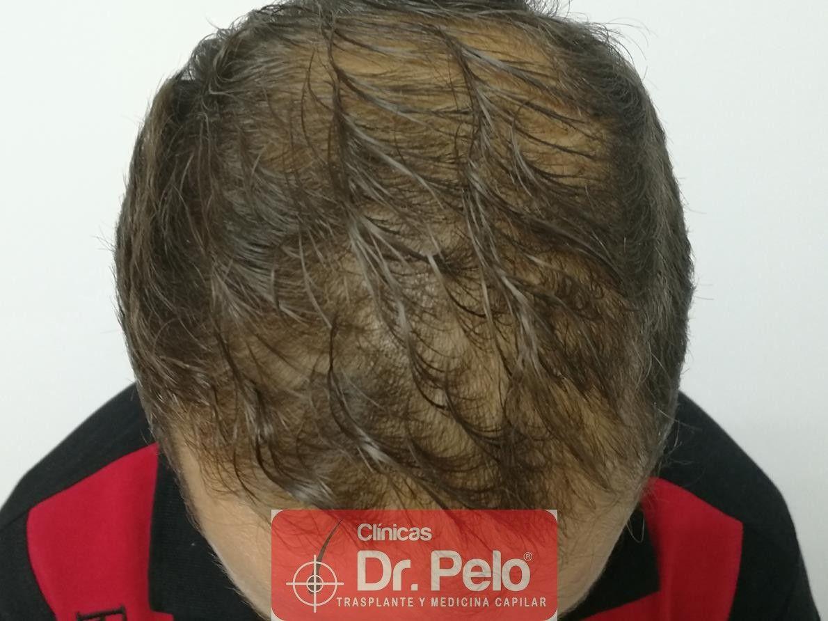 [Imagen: tratamiento-capilar-fue-dr-pelo-4-1.jpg]