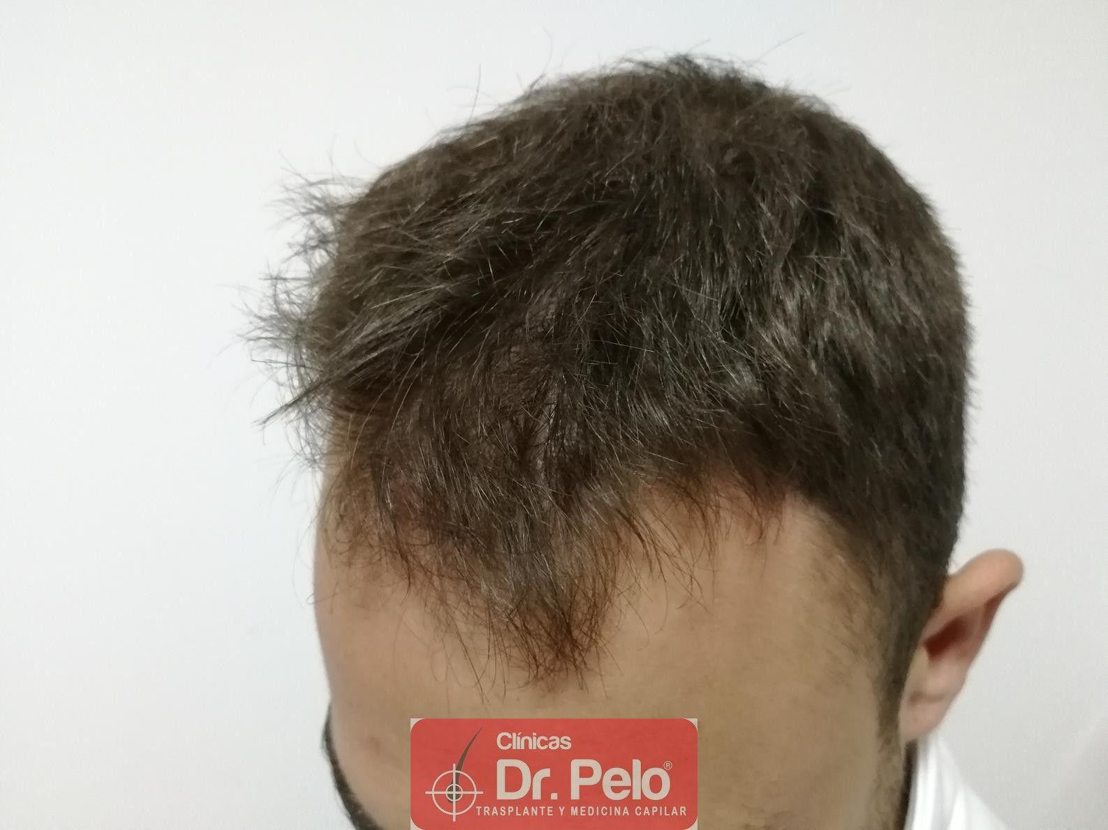 [Imagen: tratamiento-capilar-fue-dr-pelo-5.jpg]
