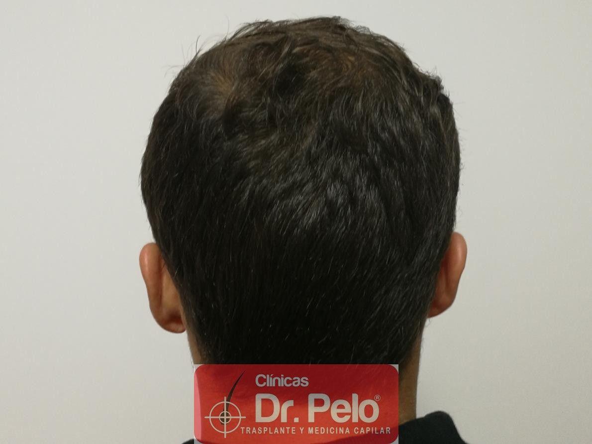 [Imagen: tratamiento-capilar-fue-dr-pelo-6-1.jpg]