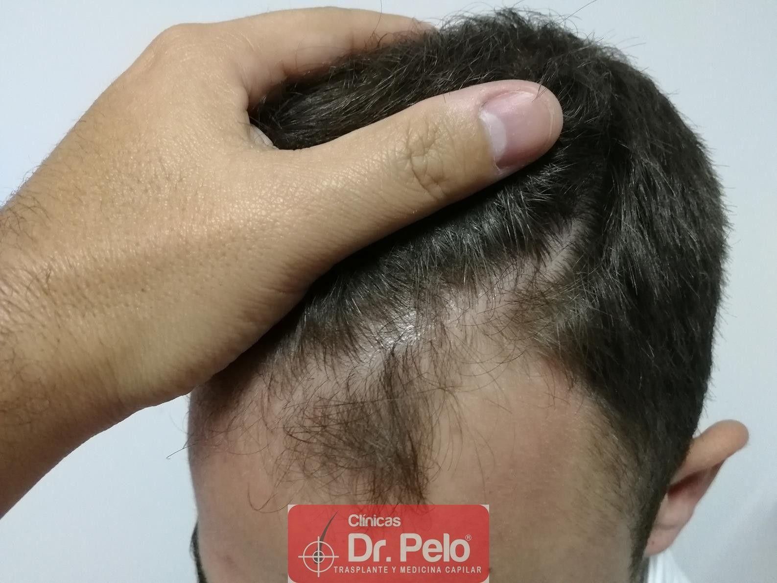 [Imagen: tratamiento-capilar-fue-dr-pelo-6.jpg]