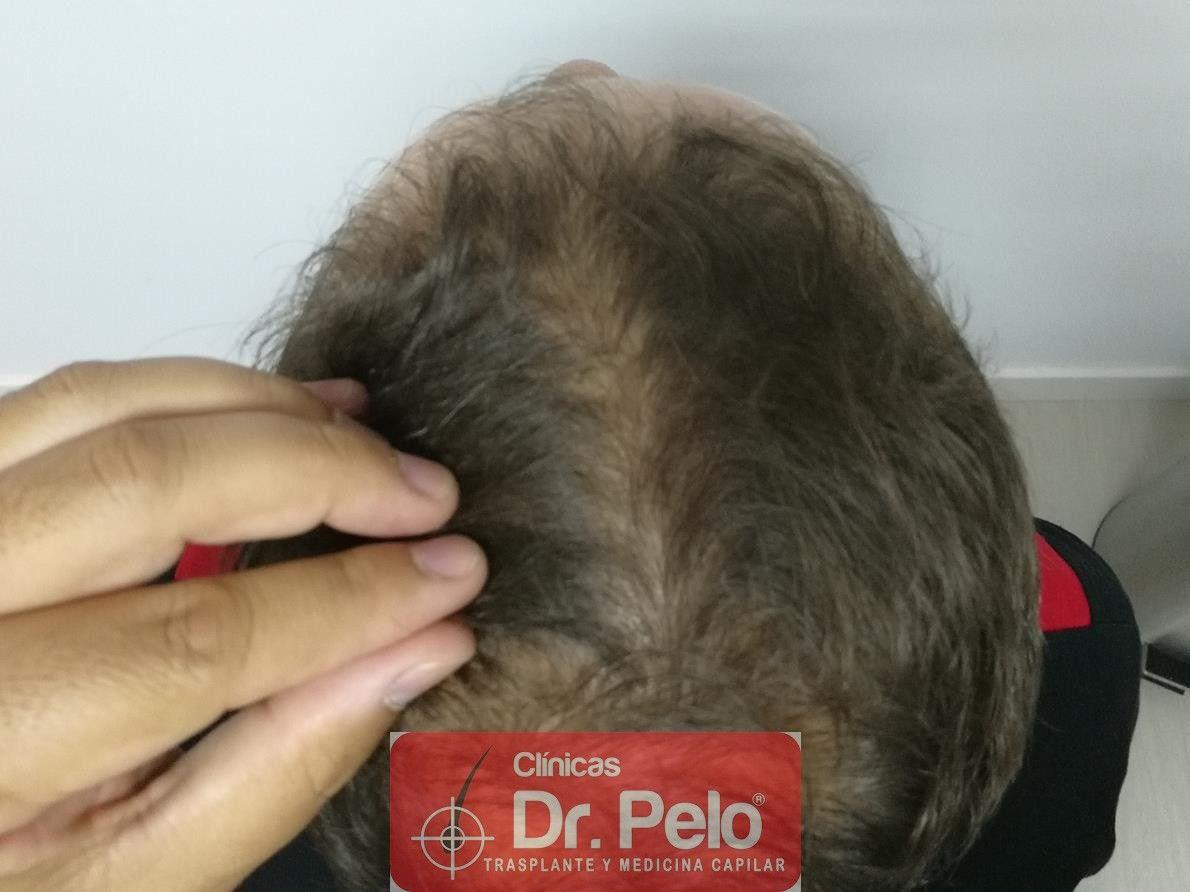 [Imagen: tratamiento-capilar-fue-dr-pelo-8-1.jpg]