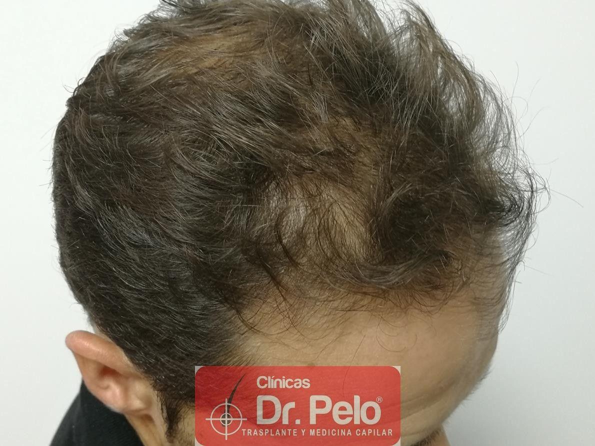 [Imagen: tratamiento-capilar-fue-dr-pelo-9-1.jpg]