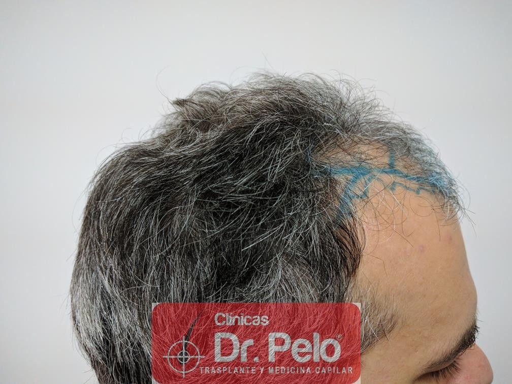 [Imagen: injerto-capilar-fue-dr-pelo-10.jpg]