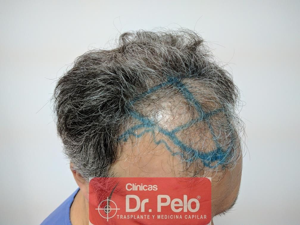 [Imagen: injerto-capilar-fue-dr-pelo-11.jpg]
