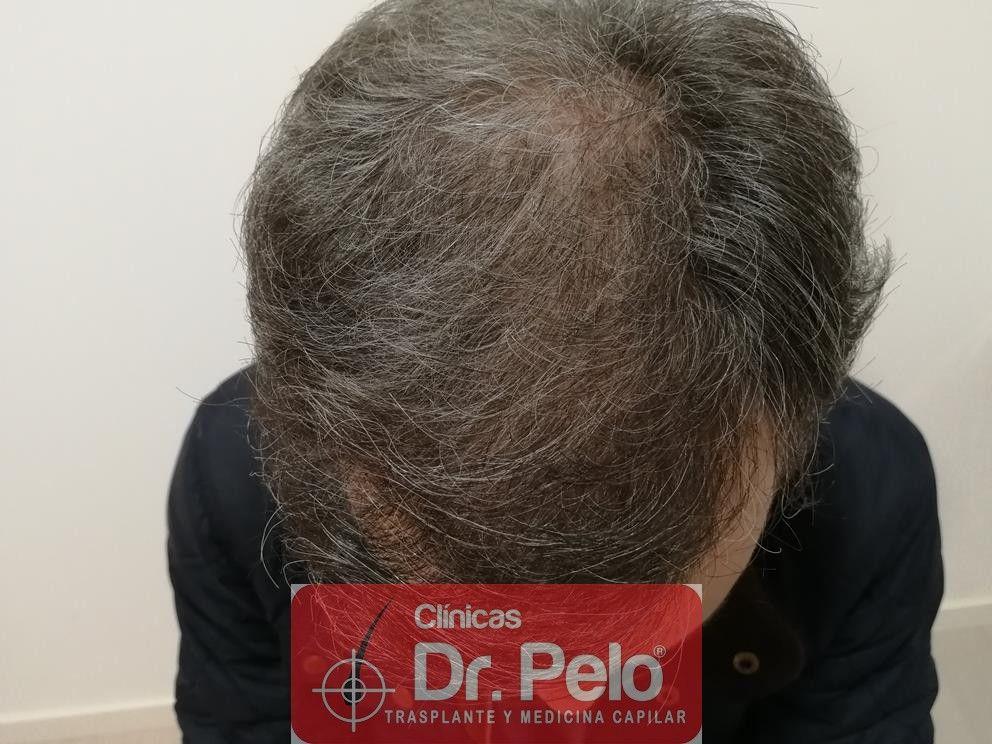 [Imagen: injerto-capilar-fue-dr-pelo-13.jpg]