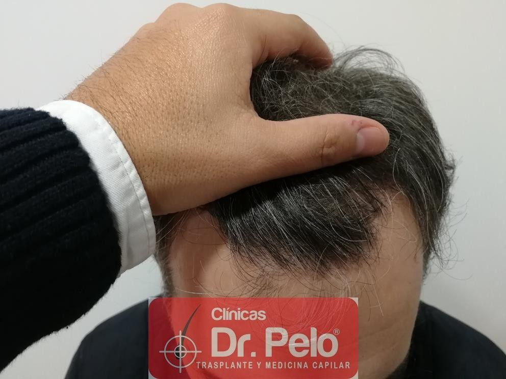 [Imagen: injerto-capilar-fue-dr-pelo-14.jpg]