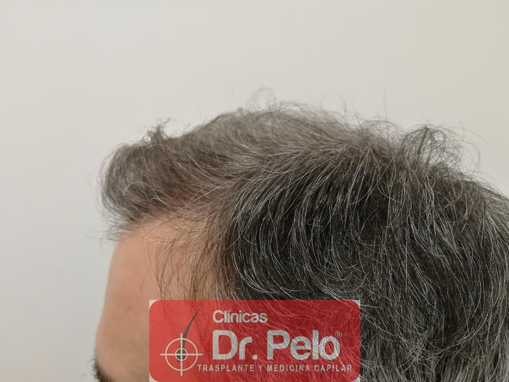[Imagen: injerto-capilar-fue-dr-pelo-15.jpg]