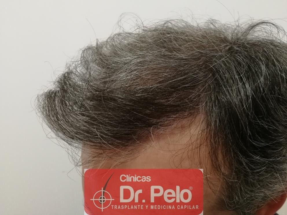 [Imagen: injerto-capilar-fue-dr-pelo-16.jpg]