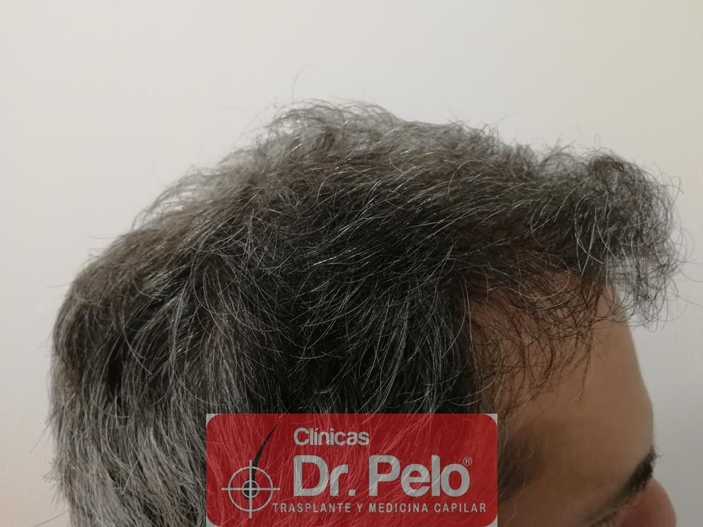 [Imagen: injerto-capilar-fue-dr-pelo-19.jpg]