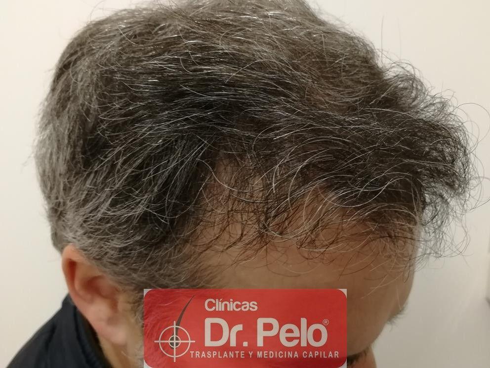 [Imagen: injerto-capilar-fue-dr-pelo-20.jpg]