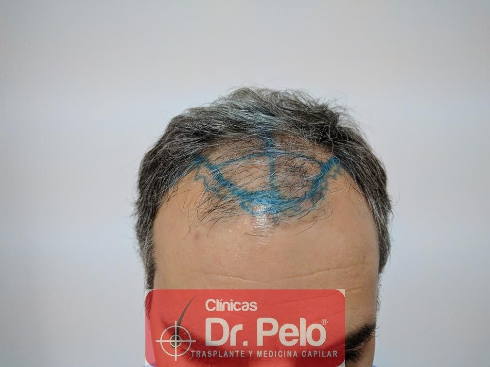 [Imagen: injerto-capilar-fue-dr-pelo-5.jpg]