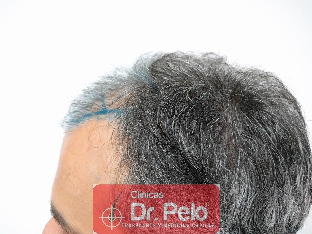 [Imagen: injerto-capilar-fue-dr-pelo-7.jpg]