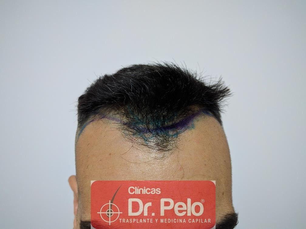 [Imagen: trasplante-capilar-fue-dr-pelo-1.jpg]