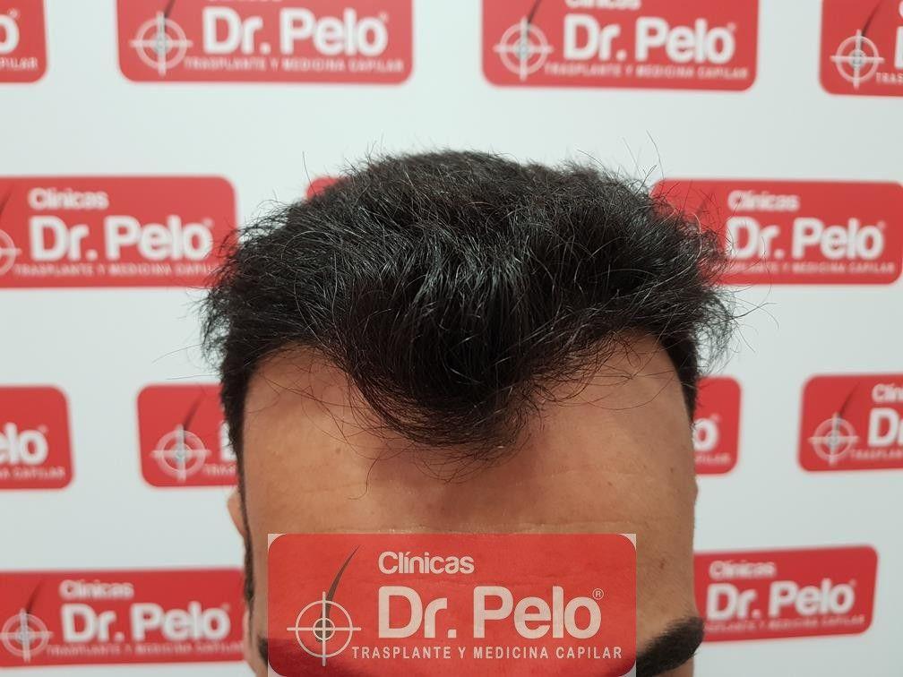 [Imagen: trasplante-capilar-fue-dr-pelo-10.jpg]