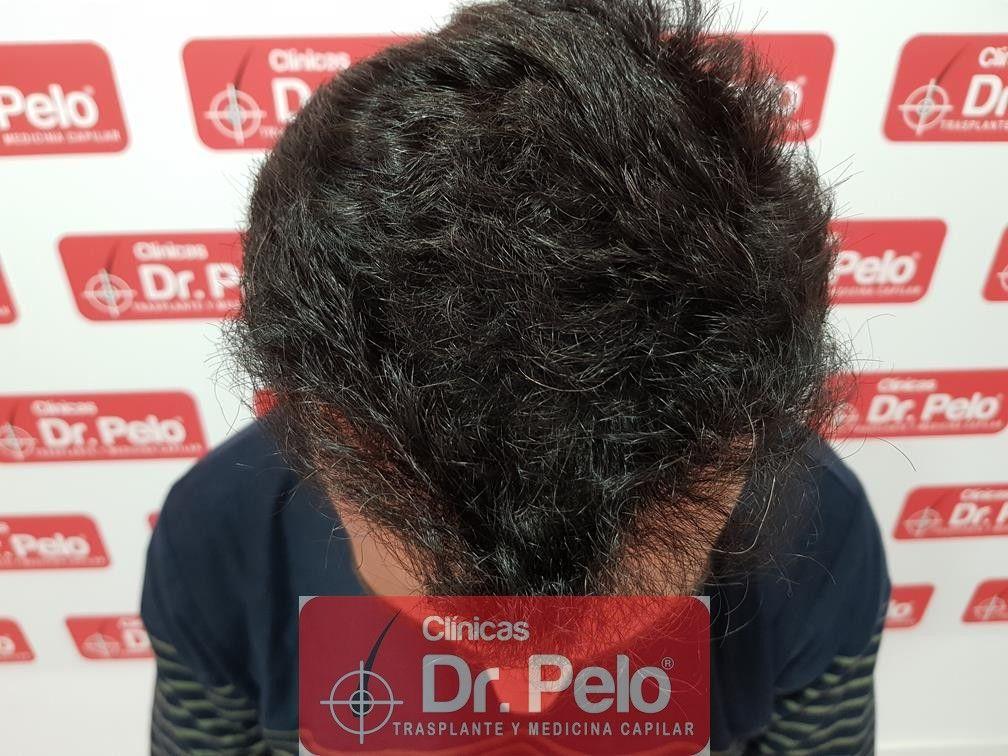 [Imagen: trasplante-capilar-fue-dr-pelo-12.jpg]