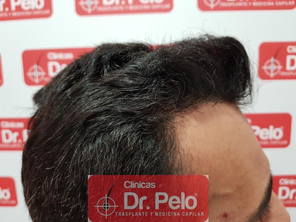 [Imagen: trasplante-capilar-fue-dr-pelo-18.jpg]