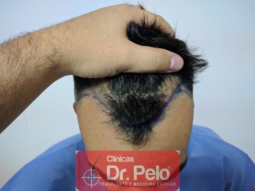 [Imagen: trasplante-capilar-fue-dr-pelo-2.jpg]