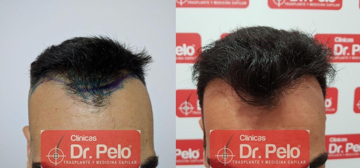 [Imagen: trasplante-capilar-fue-dr-pelo-21.jpg]