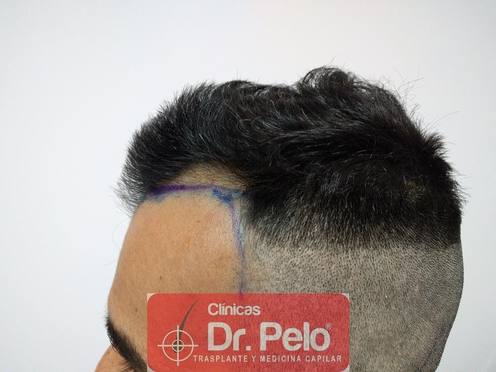 [Imagen: trasplante-capilar-fue-dr-pelo-3.jpg]