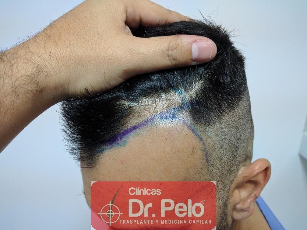 [Imagen: trasplante-capilar-fue-dr-pelo-4.jpg]