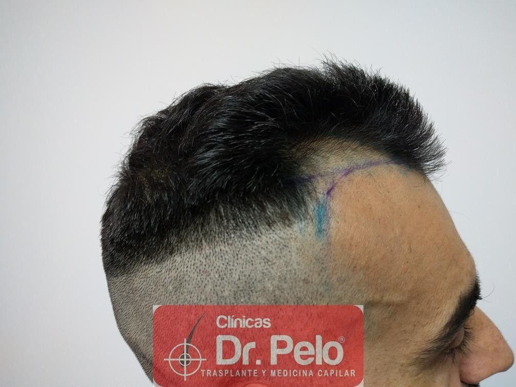 [Imagen: trasplante-capilar-fue-dr-pelo-6.jpg]