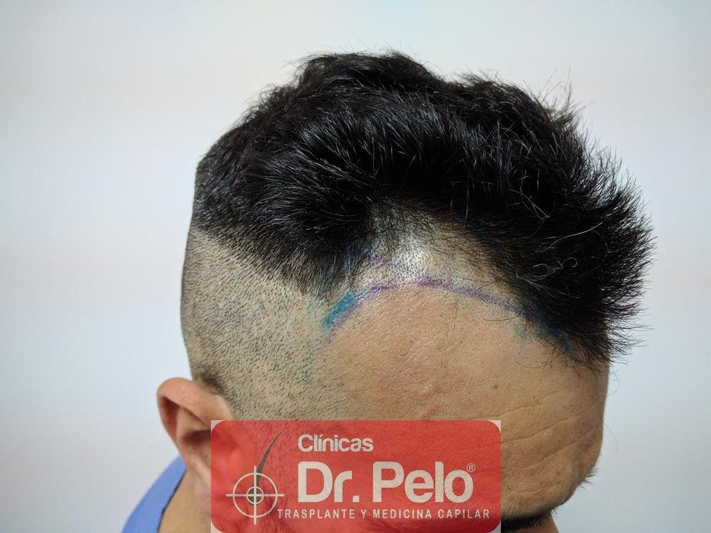 [Imagen: trasplante-capilar-fue-dr-pelo-7.jpg]