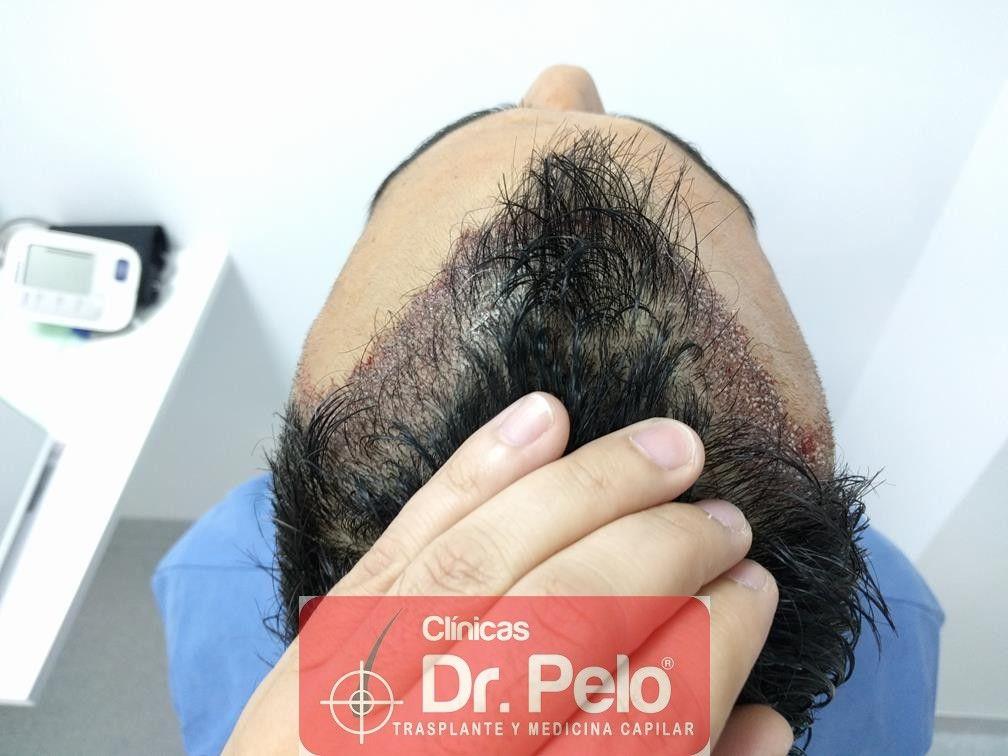 [Imagen: trasplante-capilar-fue-dr-pelo-9.jpg]