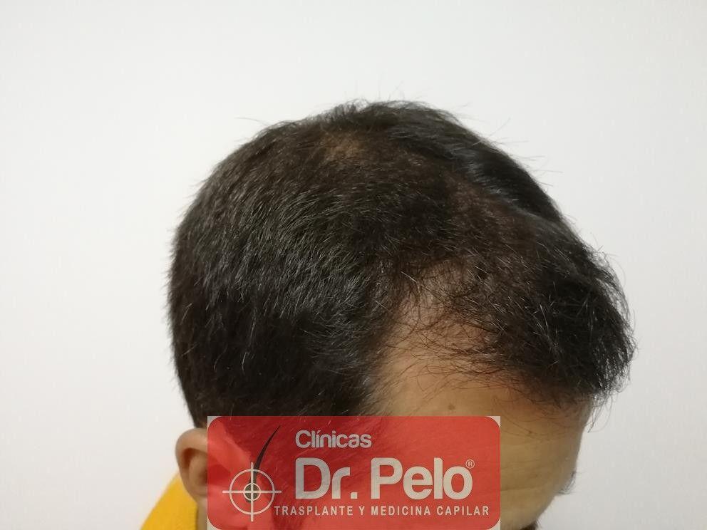 [Imagen: tratamiento-capilar-fue-dr-pelo-10.jpg]