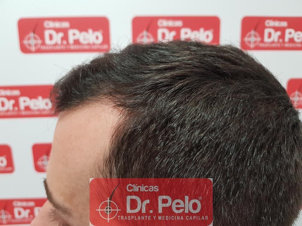 [Imagen: tratamiento-capilar-fue-dr-pelo-12.jpg]