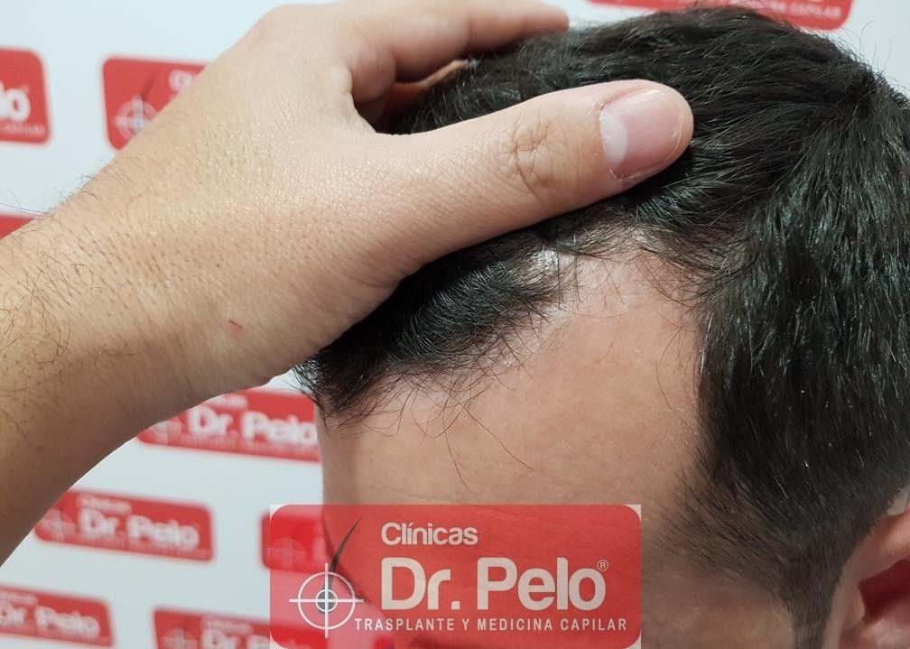 [Imagen: tratamiento-capilar-fue-dr-pelo-14.jpg]