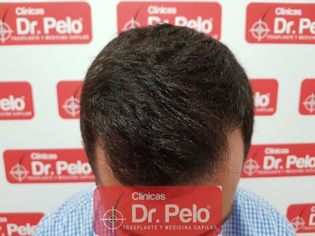 [Imagen: tratamiento-capilar-fue-dr-pelo-15.jpg]