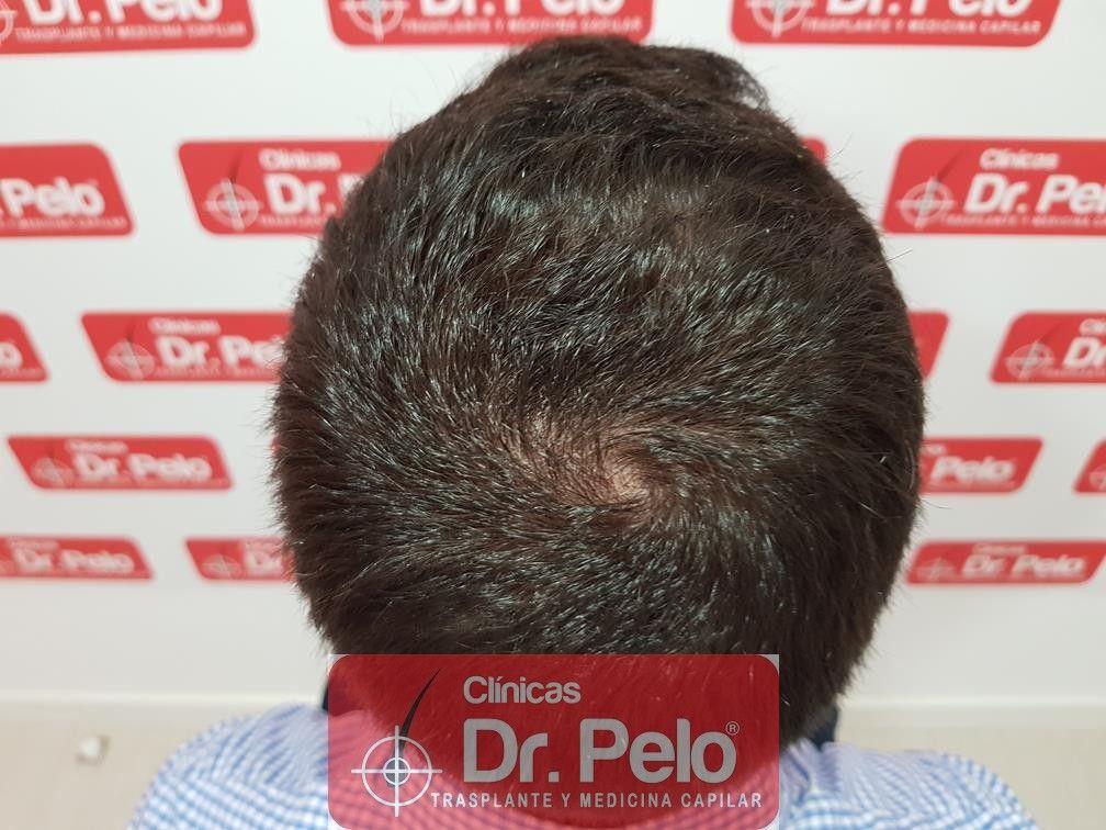 [Imagen: tratamiento-capilar-fue-dr-pelo-16.jpg]