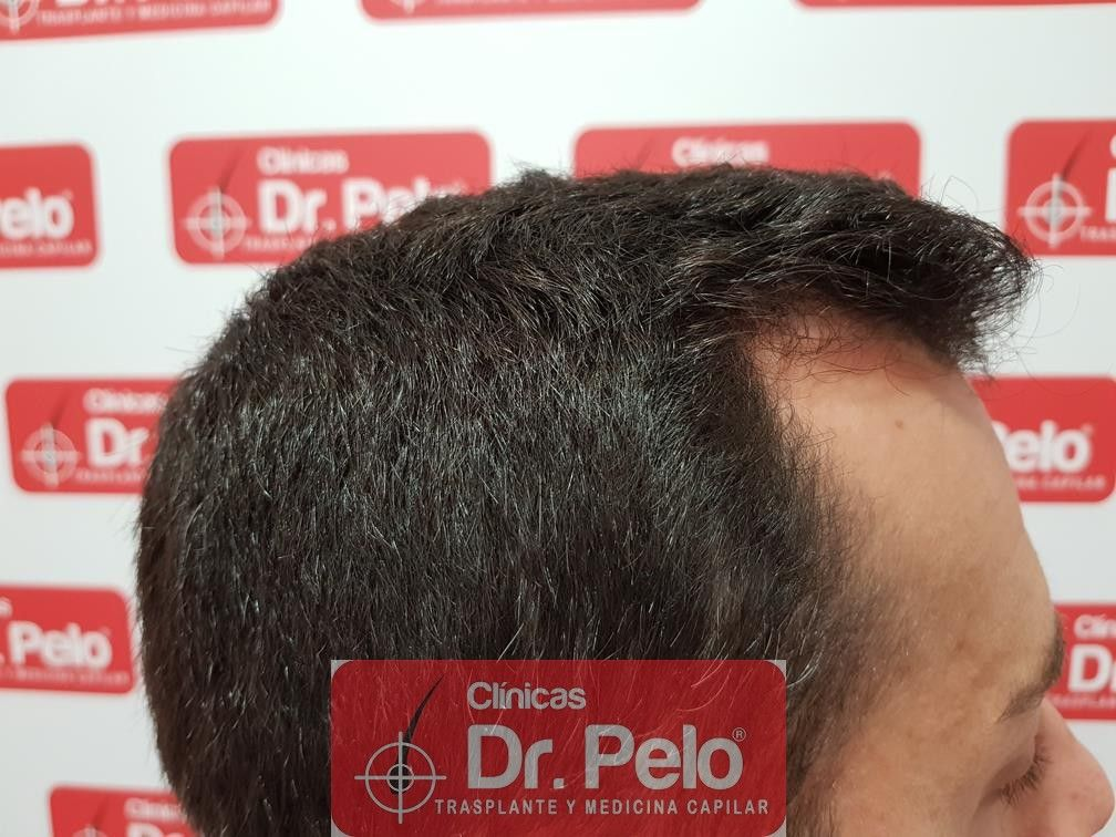 [Imagen: tratamiento-capilar-fue-dr-pelo-18.jpg]