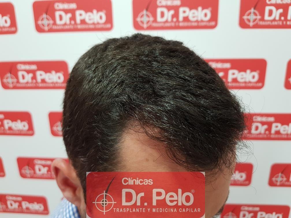 [Imagen: tratamiento-capilar-fue-dr-pelo-19.jpg]