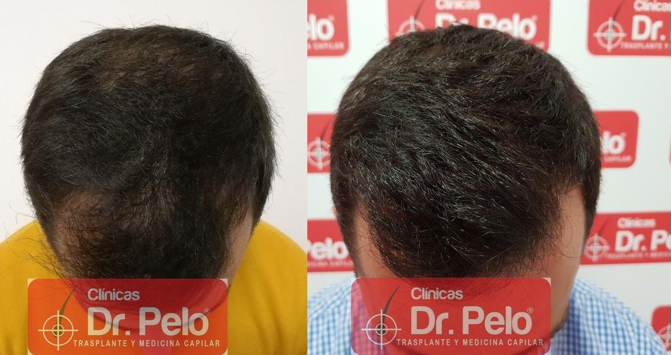 [Imagen: tratamiento-capilar-fue-dr-pelo-20.jpg]