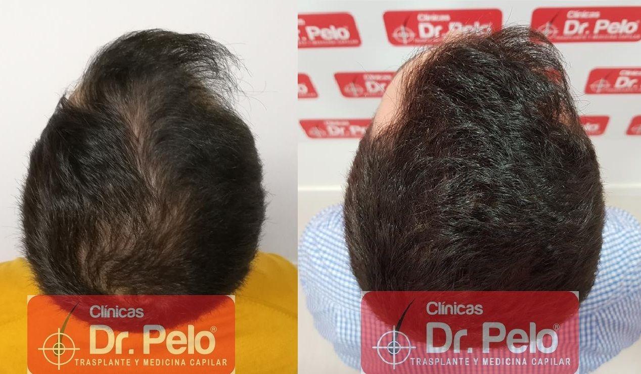[Imagen: tratamiento-capilar-fue-dr-pelo-23.jpg]