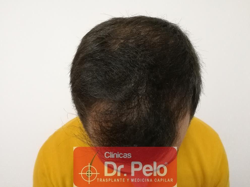 [Imagen: tratamiento-capilar-fue-dr-pelo-4.jpg]