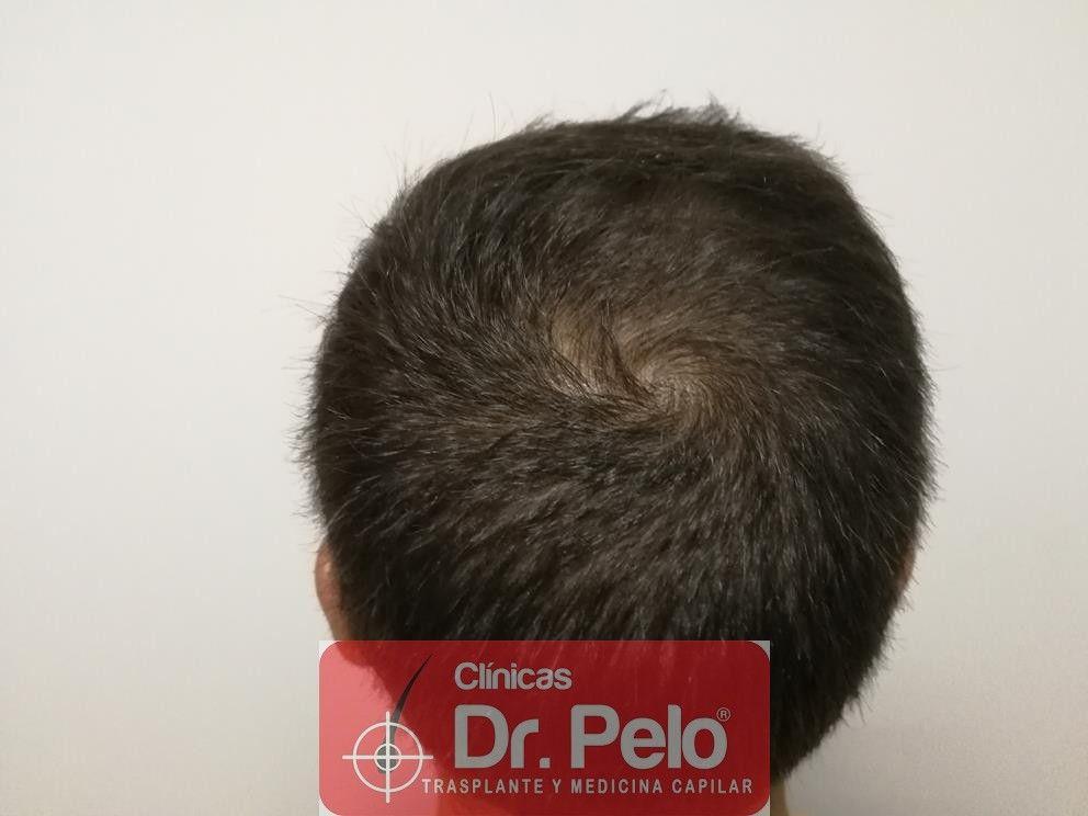 [Imagen: tratamiento-capilar-fue-dr-pelo-7.jpg]