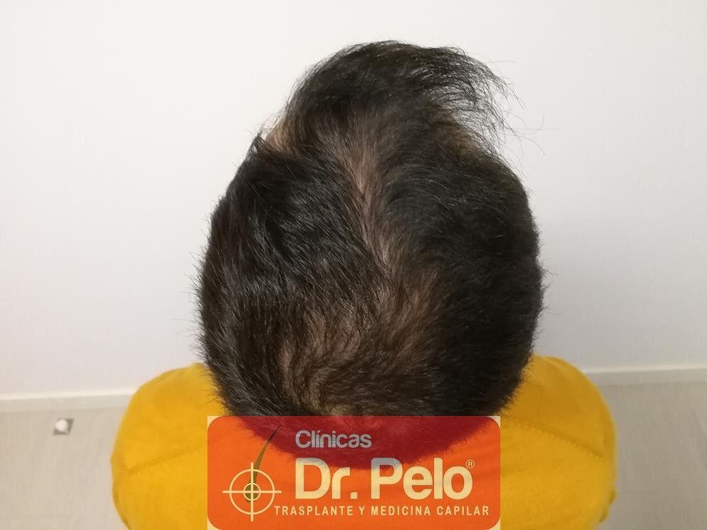 [Imagen: tratamiento-capilar-fue-dr-pelo-8.jpg]
