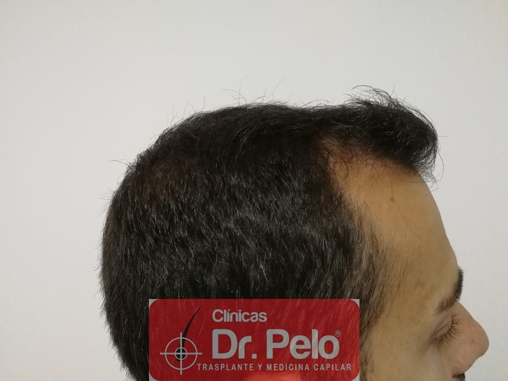 [Imagen: tratamiento-capilar-fue-dr-pelo-9.jpg]