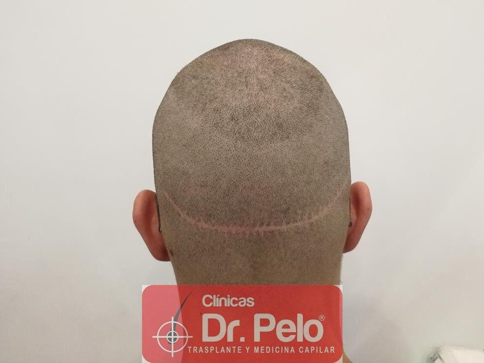 [Imagen: injerto-capilar-dr-pelo-10-1.jpg]