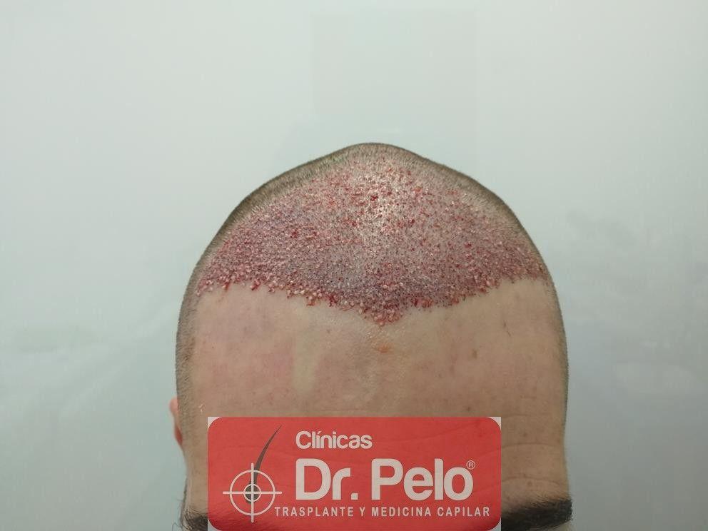[Imagen: injerto-capilar-dr-pelo-11-1.jpg]